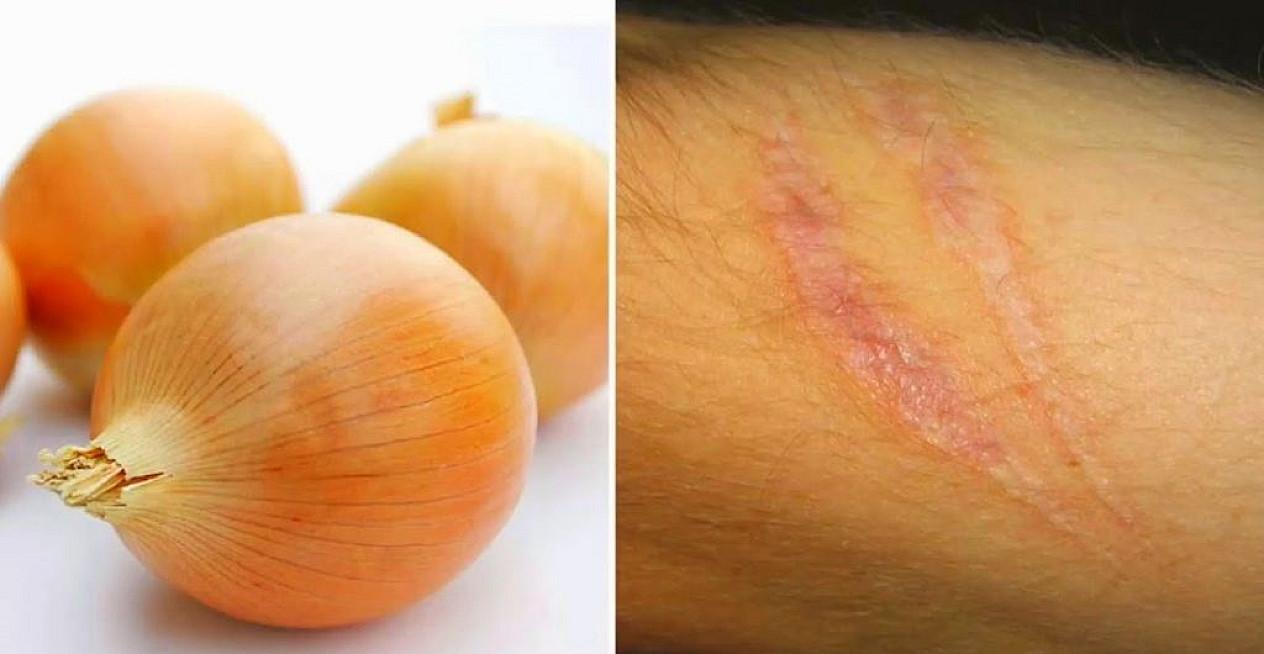 Štai kaip naudoti svogūną greitam randų, raukšlių ir pigmentinių dėmių pašalinimui!